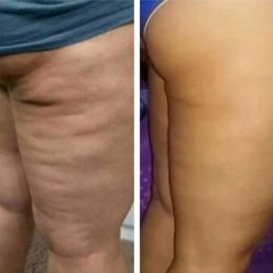 Cellulite change with the fascia blaster